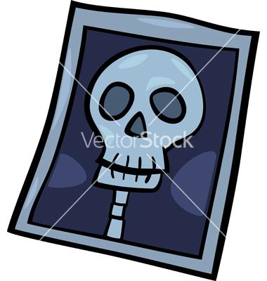 x ray photo clip art cartoon clipart panda free clipart images rh clipartpanda com x ray clip art free x ray machine clipart